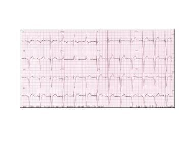 ECG-Resincro2