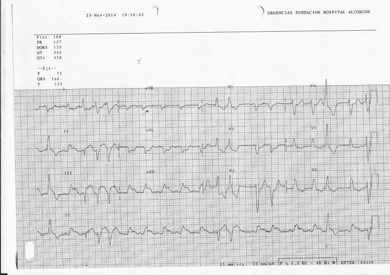 ECG-IAM-BRI-3