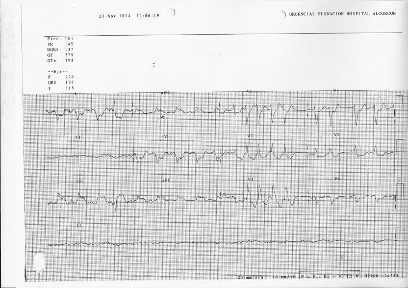 ECG-IAM-BRI-URG1