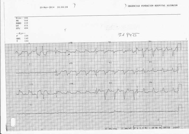 ECG-IAM-BRI-URG2