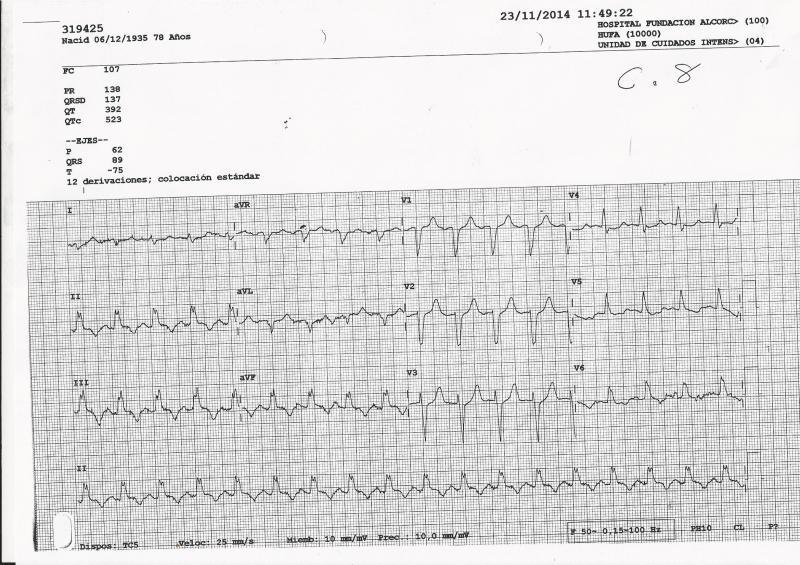 ECG-IAM-BRI