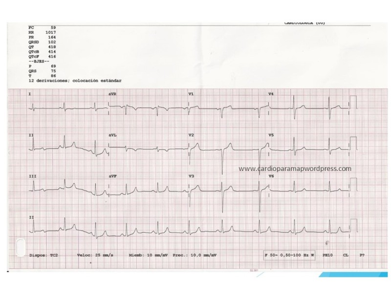 ecg-normal-tras-cx