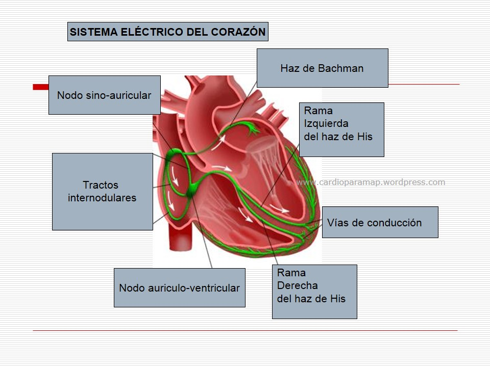 Modos de estimulación del marcapasos (II). Caso 10   cardiomap