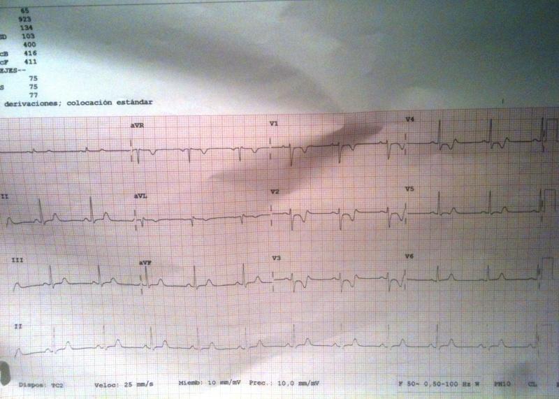 ECG-Espasmo-2