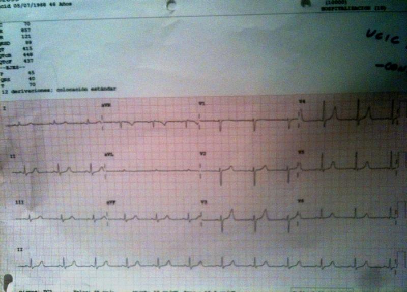 ECG-Espasmo-3