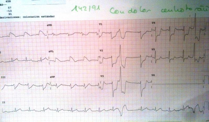 ECG-Espasmo-4