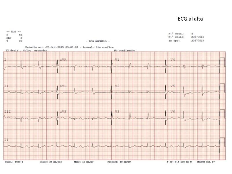 ECG-alta