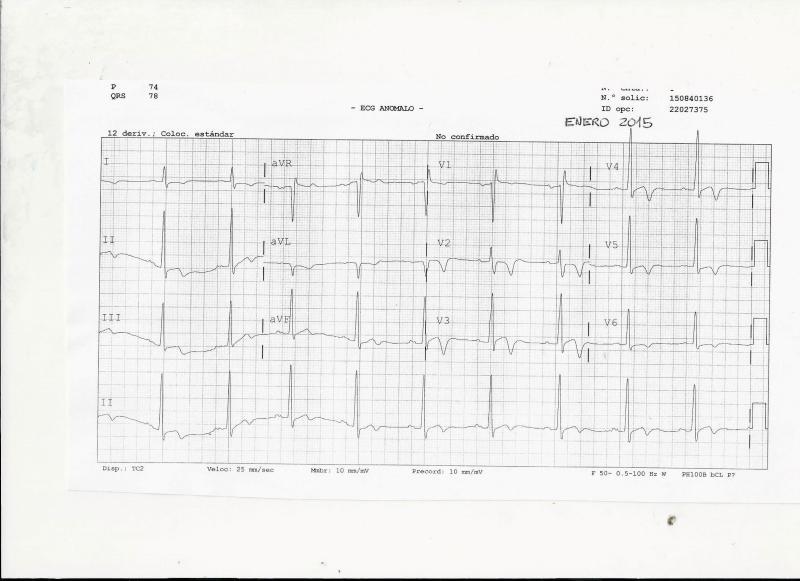 ECG-1-ENERO15-1