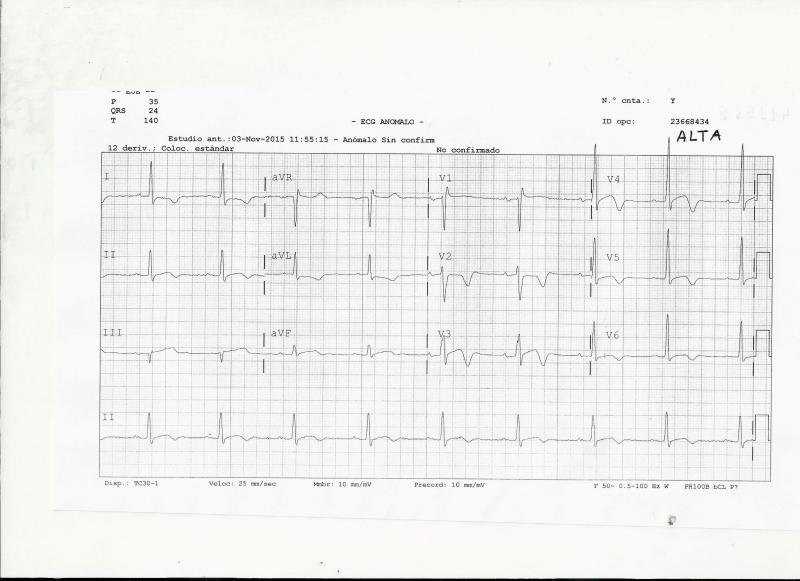 ECG-ALTA-1