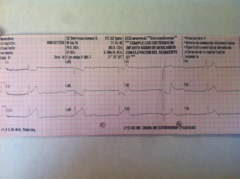 Bloqueo completo IAM inferior ECG completo.JPG