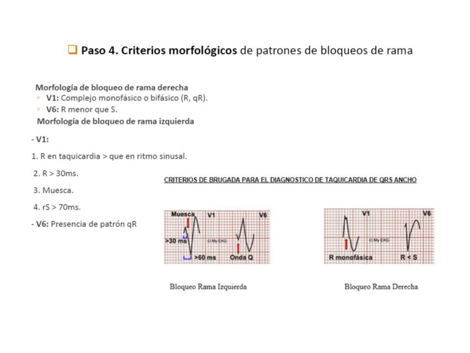 patrones-morfologicos-de-bloqueo-de-rama-en-tv