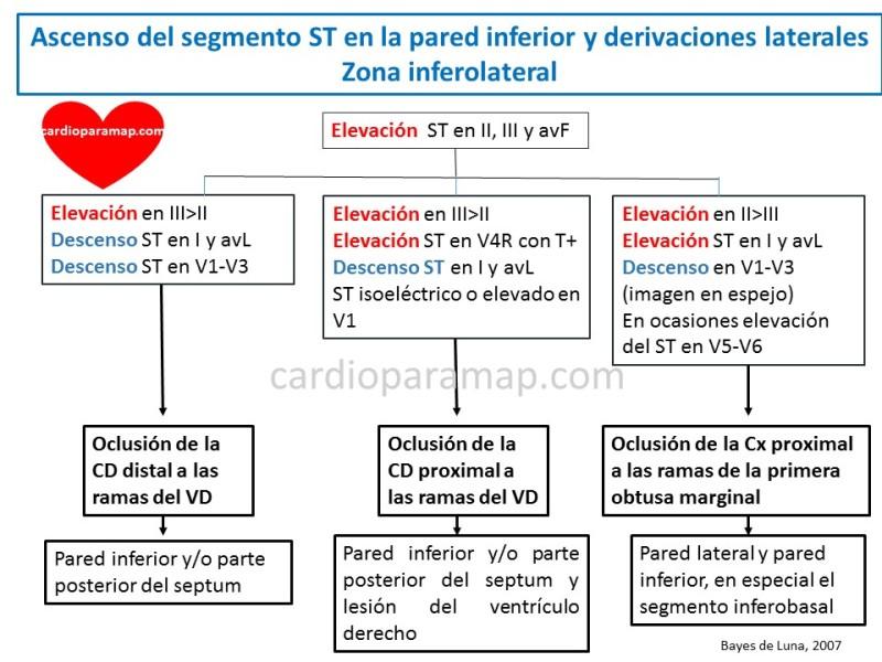 localiza-la-arteria-del-infarto