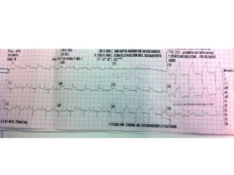 ECG Summa modificado