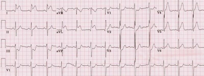 lateral-IAM -1st-diagonal