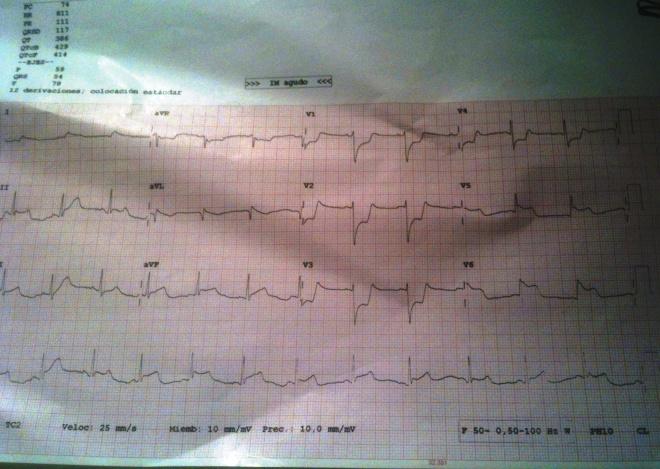 ECG-Espasmo-1
