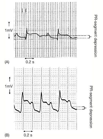 Infarto auricular-2.jpg