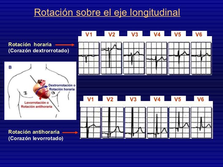 Dextrorrotación y Levorrotación