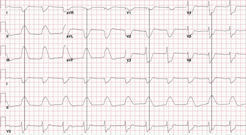 SHARK-FINE-WITH-LINES-FINAL ECG