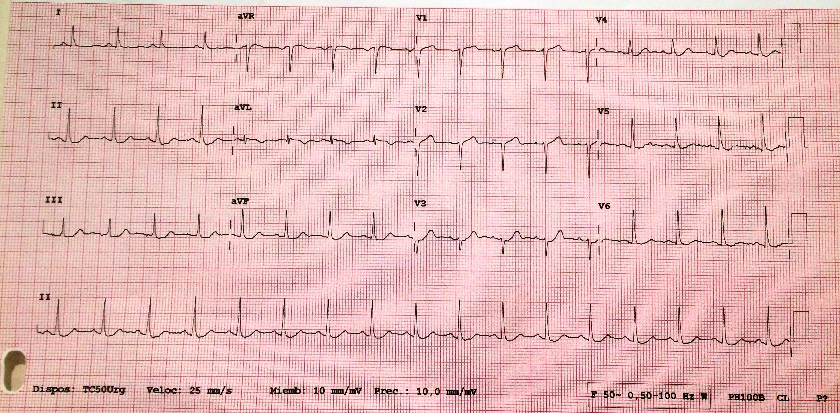 ECG Urgencias